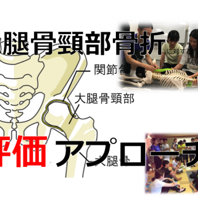 大腿骨頚部骨折のリハビリテーション