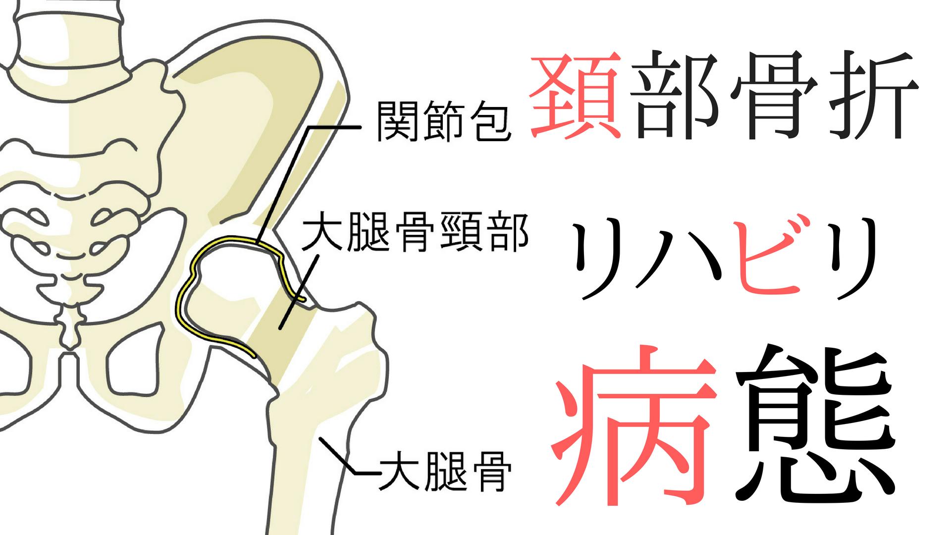 脱臼 人工 術 骨頭 置換