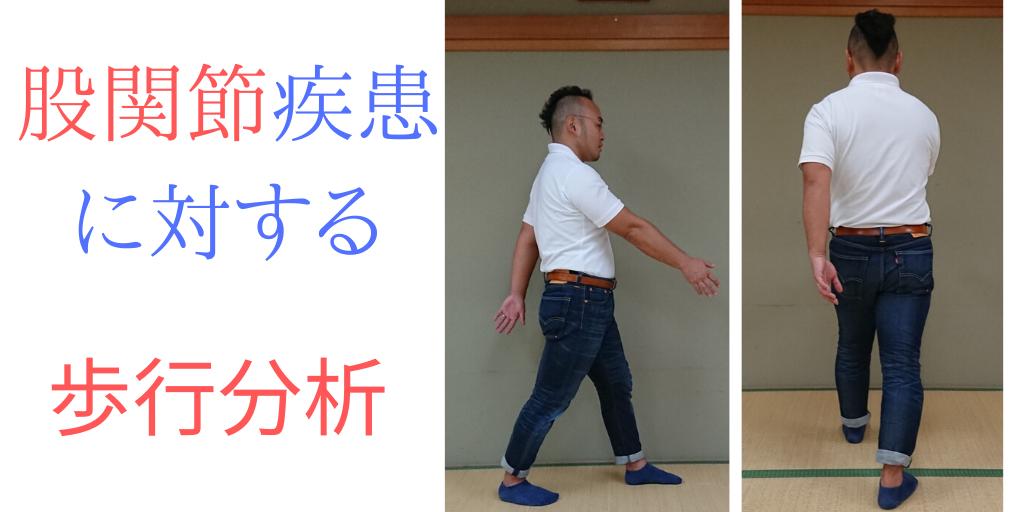 股関節疾患に対する歩行分析